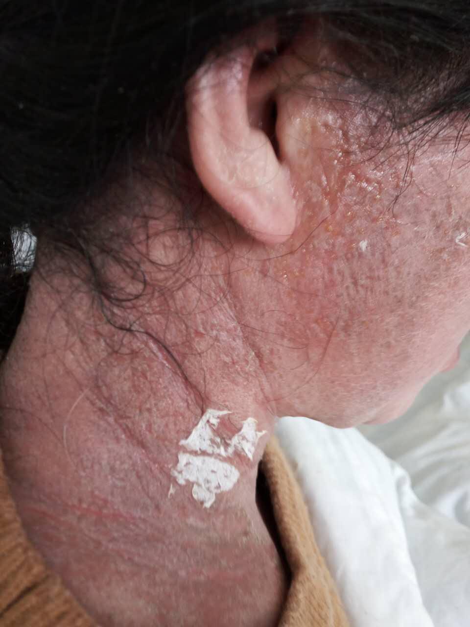 照片里的可怜人,由于头发焗油而导致全身过敏性皮炎,在诊所看了一个月没有好转,用可丽金健肤喷雾+可愈16天后的效果,可见类人胶原蛋白对肌肤修复的功效有多强大