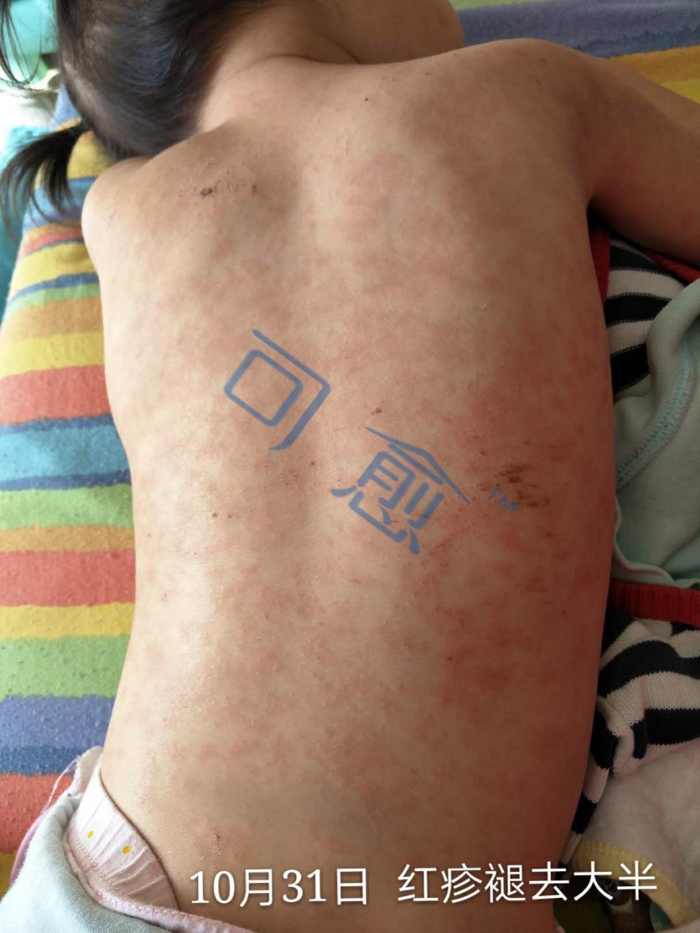 好心情反馈  三岁半的女孩子,10月27日突然起了疹子 ,医院诊断是急性荨麻疹+过敏性皮炎,用了两天炉甘石效果并不明显,29日开始使用可愈G,一天涂抹3次,晚上的时候已经可以正常入睡,到31日部分红疹就已经褪去,10天后已恢复健康状态,可愈真的很棒!