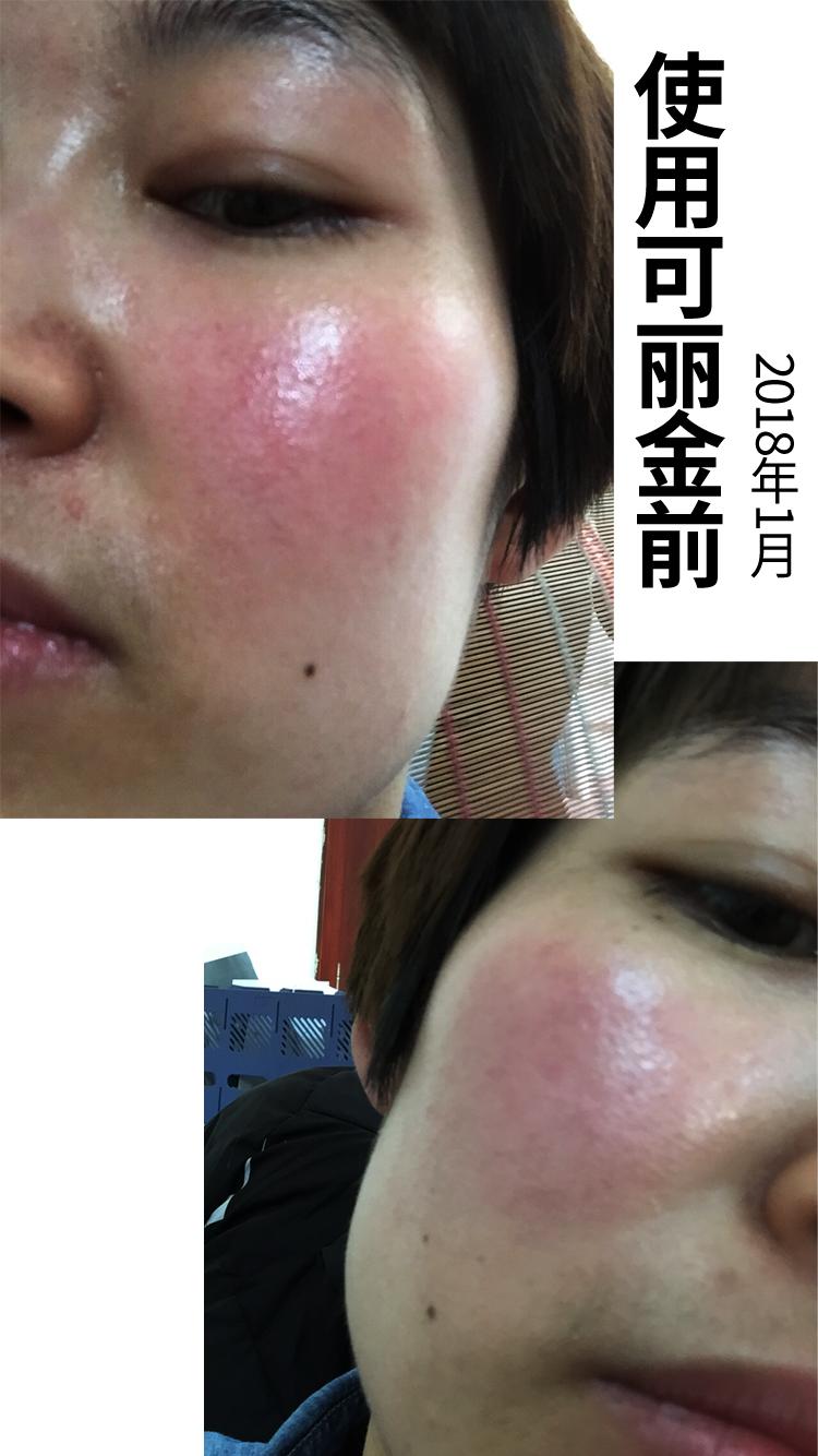 发反馈的时候就特别高兴 姑娘敏感皮、泛红干痒,试用多种产品都没有改善。后来接触到了可愈R,使用前几天一直在反复质疑,直到皮肤状况缓解后,习惯开始用舒敏喷雾续命了,之后慢慢加了健肤洁面和修护面膜。 从18年1月到5月,终于回归到健康皮肤,白嫩水润的皮肤谁不爱?敏感皮救星太棒了~~