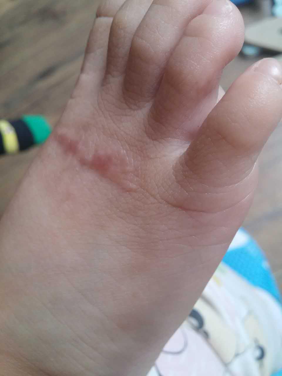 给大家分享一个可痕的反馈图:这位宝宝不小心烫到了脚,水泡下去以后就是疤痕的增生,断断续续用可痕一个月,疤痕变薄变软 (大家记得每天坚持早晚清洗疤痕,涂抹可痕后要按摩2分钟,会更快见效哦~